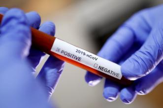 novozaraženi korona virusom